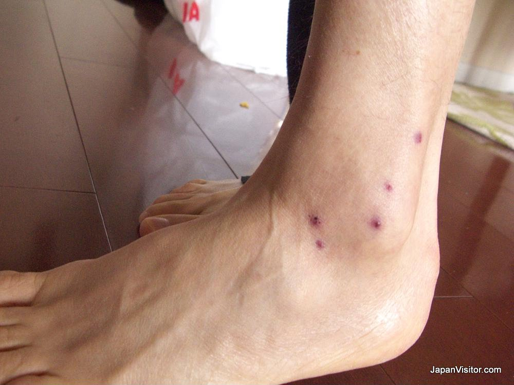 Ankle sprain improved by leeches, in Tokyo, Japan.