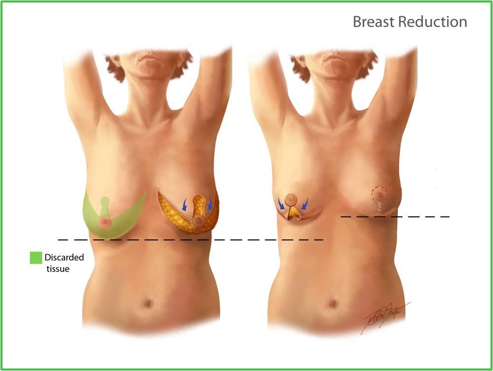 lucy liu breast reduction