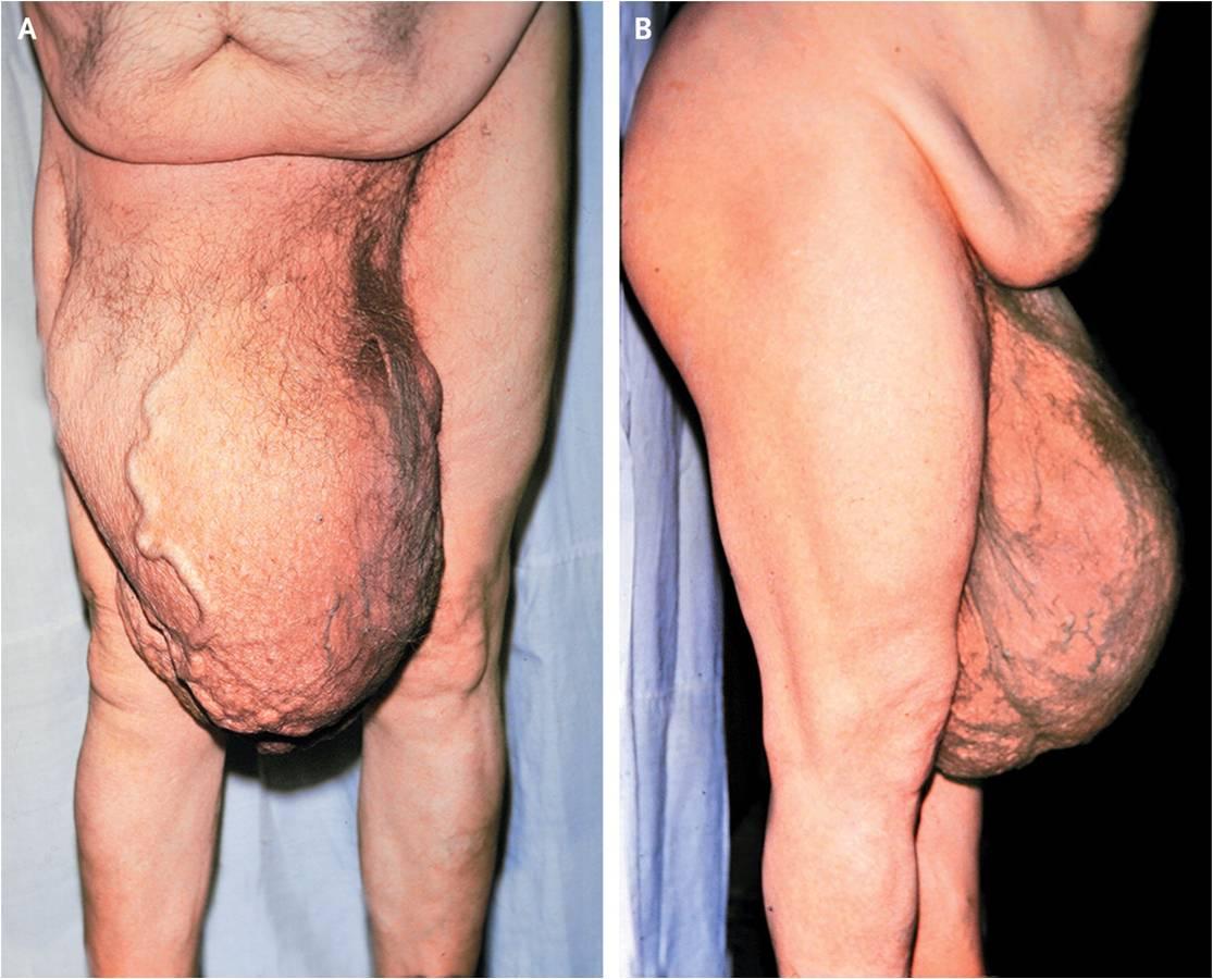 gynecomastia symptoms steroids