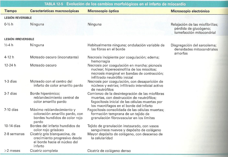Patología : CARDIOPATÍA ISQUÉMICA