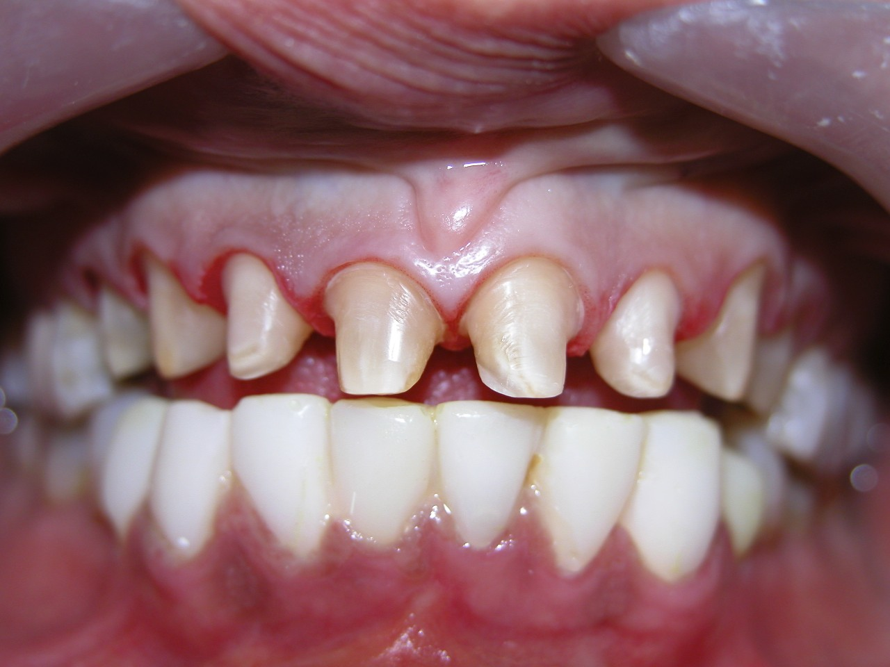 Crowns or veneers 33