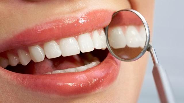5 Tips Cepat Memutihkan Gigi Kuning Berkarat Paling Ampuh