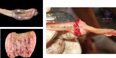 Xuất huyết tràn lan cơ thể, viêm ruột xuất huyết hình nhẩn.