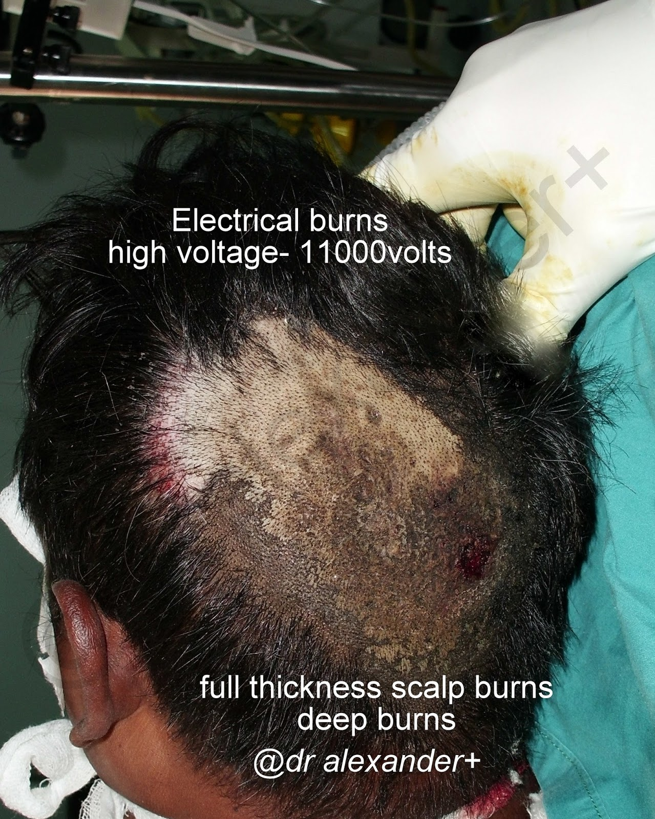 Cosmetic Plastic Surgeon Treating Complex Burn Injuries Accidents Alternating Current Diagram Ac And Dc Direct Electric Transformer Burns Scalp Transposition Flap