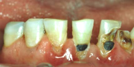 Image result for παθήσεις δοντιών φωτό