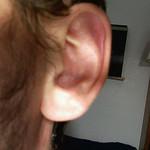 Zumbido en los oidos