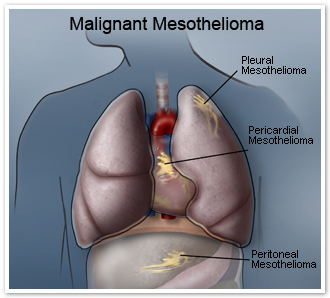 What is Malignant mesothelioma