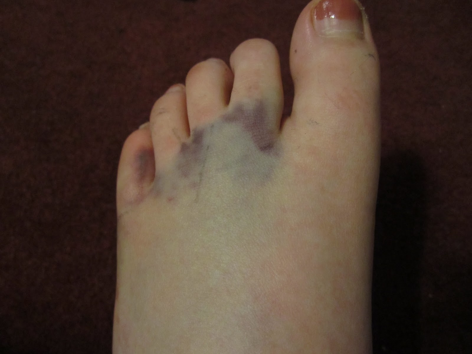 Of toes broken pictures