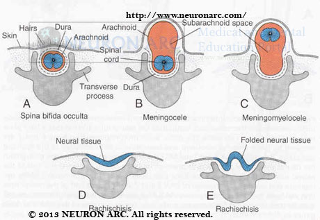 Congenital Abnormalities of Vertebral Column and Spinal Cord