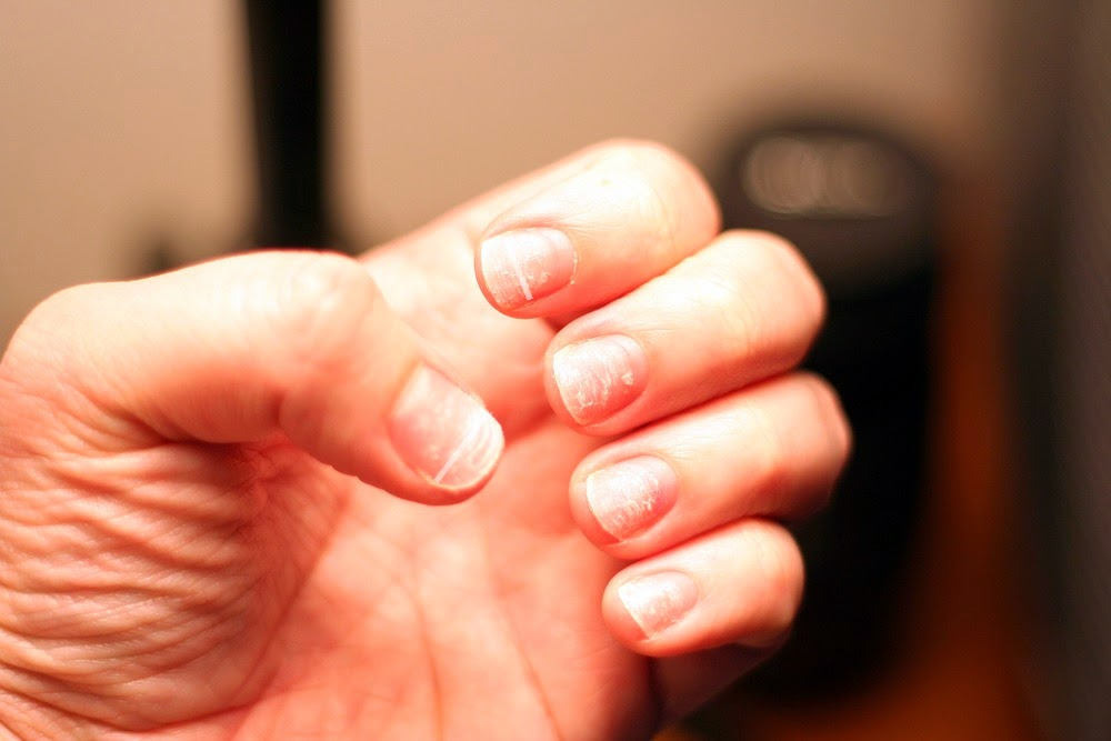 The Life Extension Blog: Ridges in Your Nails Point to Larger Health ...