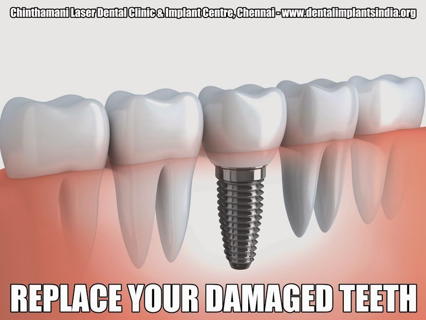 types of dental implants in chennai