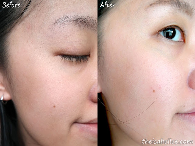 Results after using Cellnique Derma Whitening Essence & Advanced Bio Renewal Serum