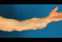 Lipoma in the arm