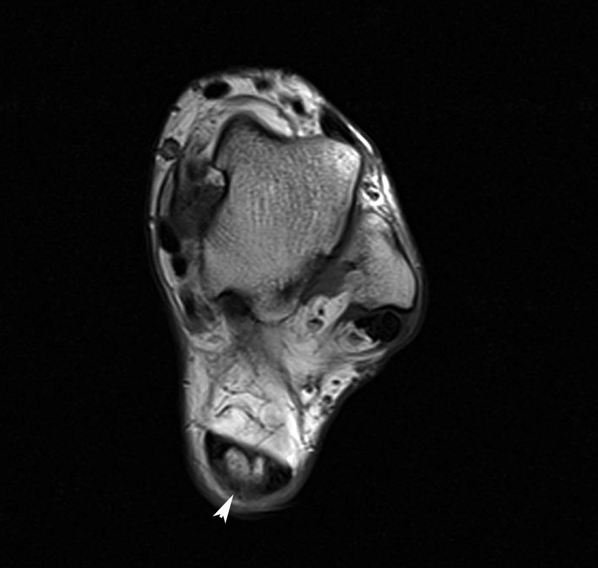 MRI Musculo-Skeletal Section: Achilles Tendonitis - MRI
