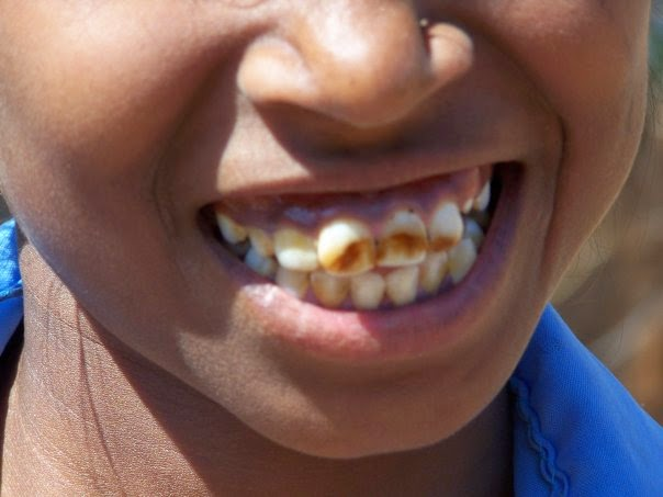 få bort vita fläckar på tänderna