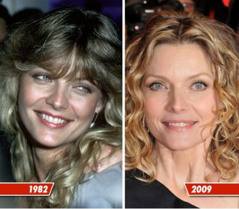 Michelle Pfeiffer before and after plastic surgery (30