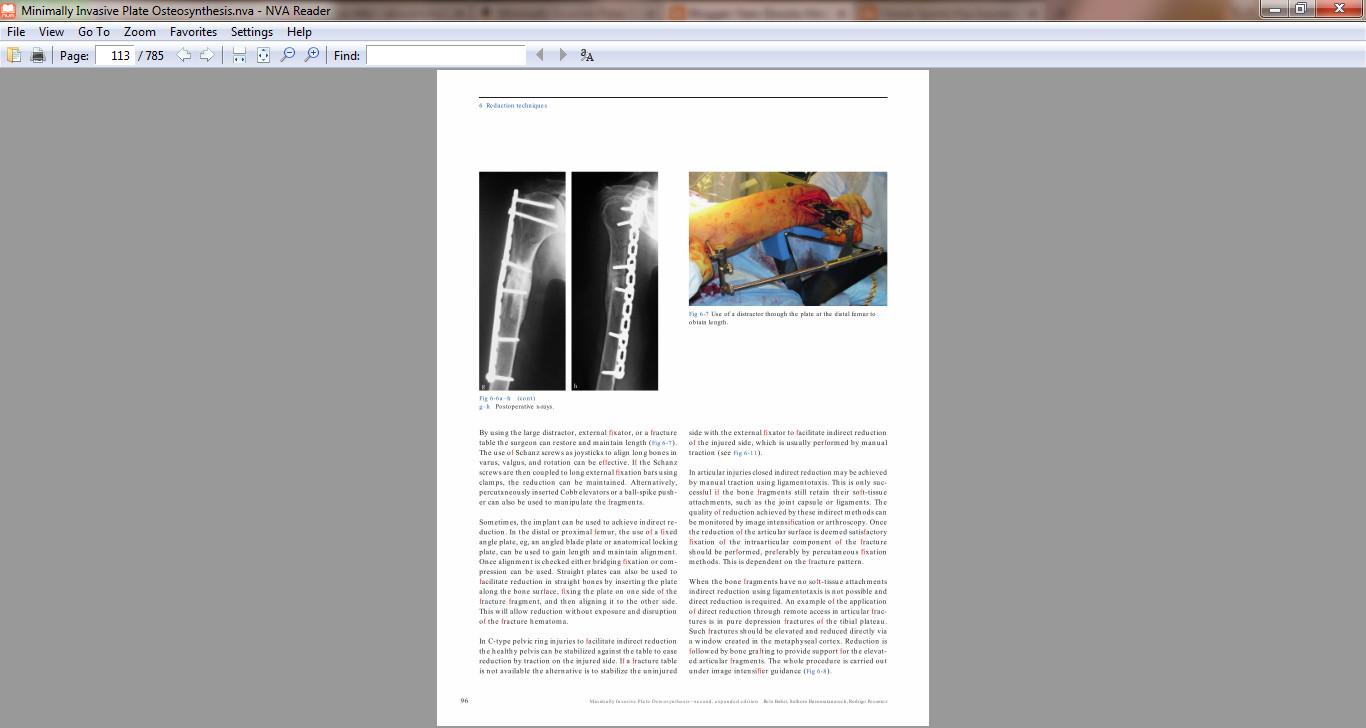 minimally invasive osteosynthesis