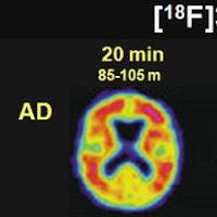 F18 Brain Scan