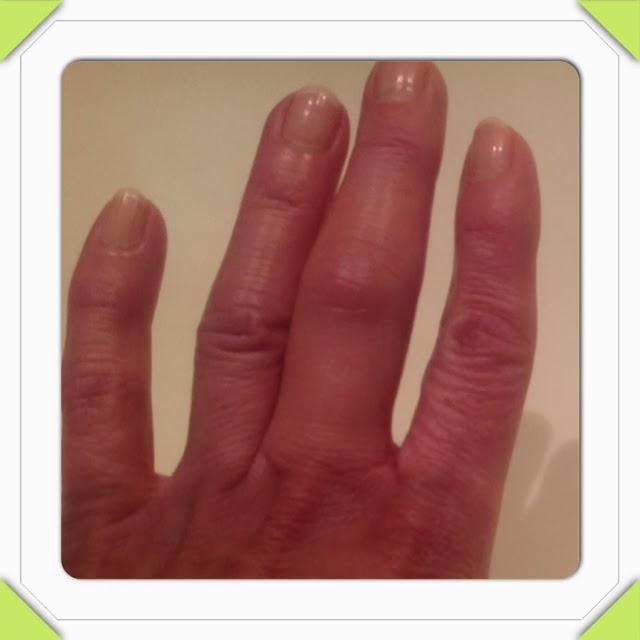 ondt i fingerled