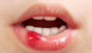 Pengobatan Alami untuk Bibir Pecah-pecah