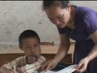 Budak lelaki dengan lidah cacat