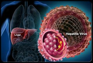 Hati - Hati, Penyakit Hepatitis Bisa Menyerang Tanpa Rasa Sakit