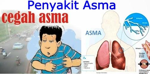 Gejala Penyakit Asma Dan Pencegahannya
