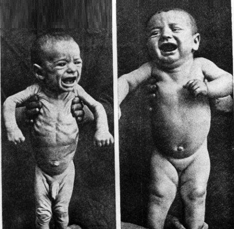 Como comienza la psoriasis en los pies