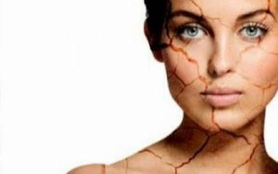 kulit kering, dry skin