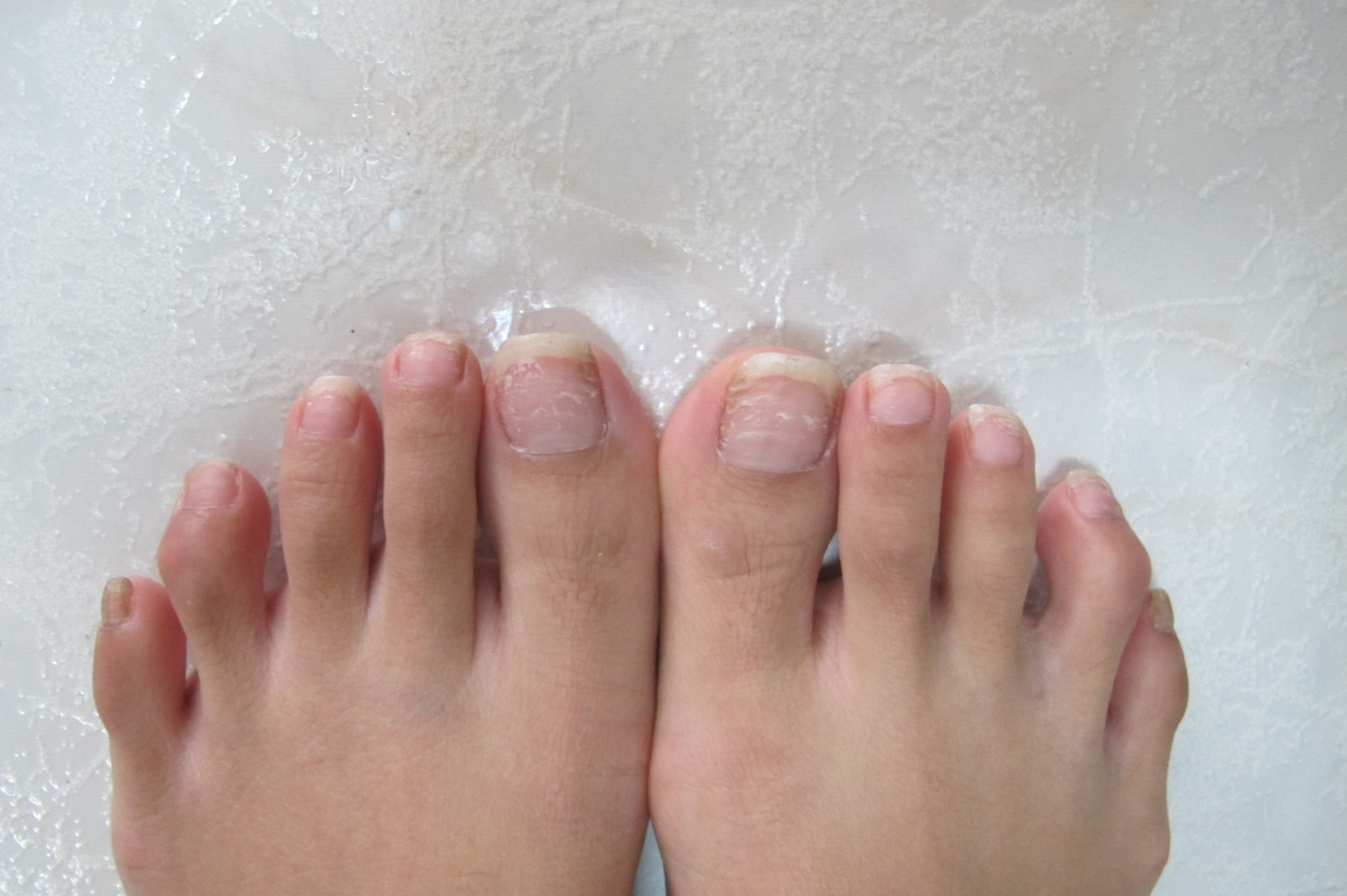 How To Cure Brittle Nails