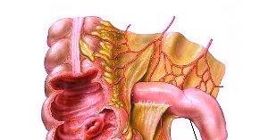 apendicita recuperare