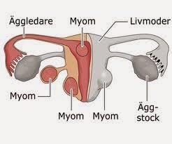 cancer äggledare symptom