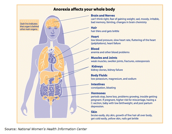 Whats Eating You Consequences Of Anorexia