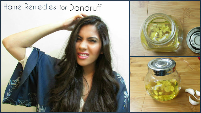garlic, garlic oil, garlic oil for dandruff, garlic oil for hair growth, home-remedies, Home remedies for dandruff, home remedies for itchy scalp, how to treat dandruff at home, itchy scalp, beauty , fashion,beauty and fashion,beauty blog, fashion blog , indian beauty blog,indian fashion blog, beauty and fashion blog, indian beauty and fashion blog, indian bloggers, indian beauty bloggers, indian fashion bloggers,indian bloggers online, top 10 indian bloggers, top indian bloggers,top 10 fashion bloggers, indian bloggers on blogspot,home remedies, how to