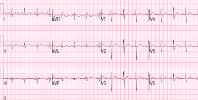dr. smith's ecg blog: brugada pattern induced by tricyclic