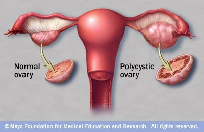 Normal Ovary vs Polycystic Ovary - PCOS