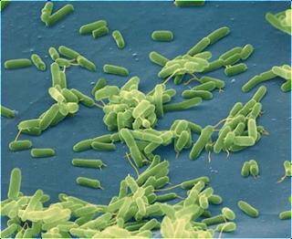Objek yang di rekam oleh Microscop elektron
