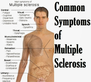 Common Symptoms of Multiple Sclerosis