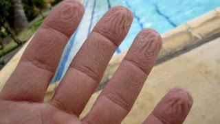 Όταν τα δάχτυλά σας ζαρώνουν στο νερό, δεν είναι επειδή «μούλιασαν»…