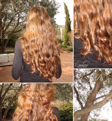 Real trans hair la transplantation des cheveu