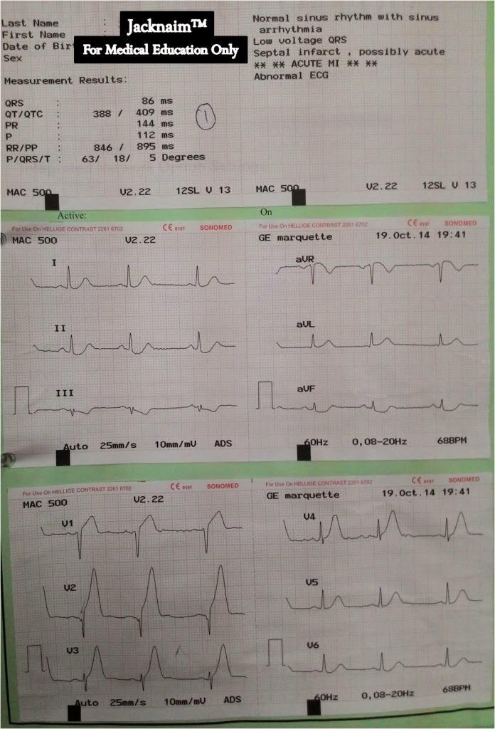 synthroid vs generic levothyroxine