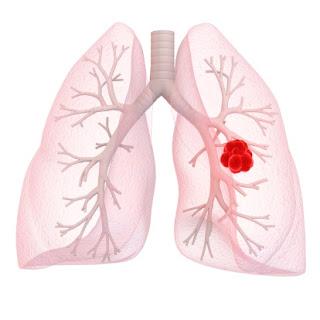 Image obat kanker paru paru