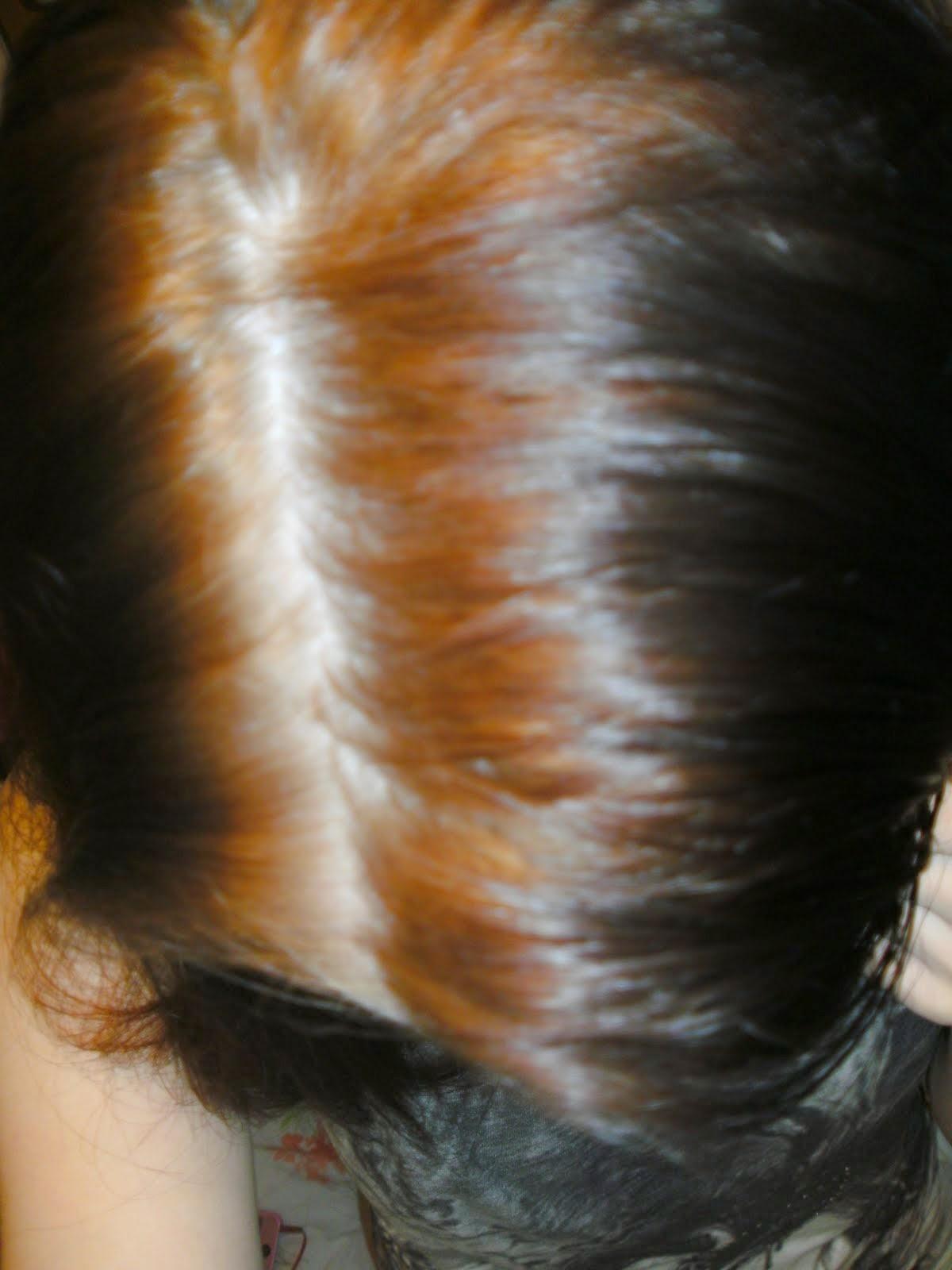 La pigmentación sobre la persona la enfermedad