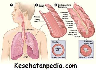 2 cara mengatasi penyakit asma secara tradisional