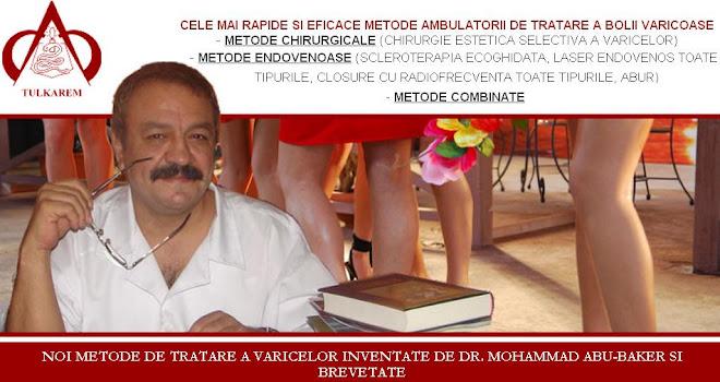 doctor varice