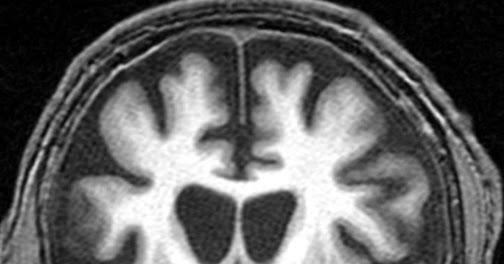 HEALTH FROM TRUSTED SOURCES: Huntington's Disease