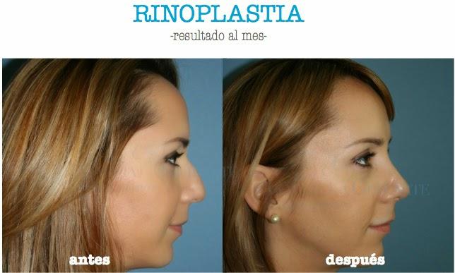 rinoplastia_tabique_nariz