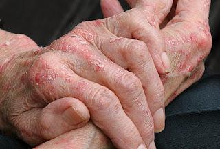 Озонотерапия при атопическом дерматите