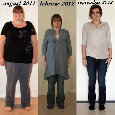 slankeoperasjon før og etter bilder