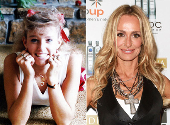 Taylor Armstrong Plastic Surgery Before And After Botox